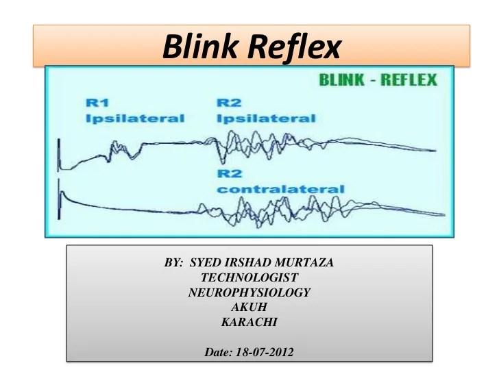 reflex arc diagram 3 phase 4 pole induction motor wiring blink