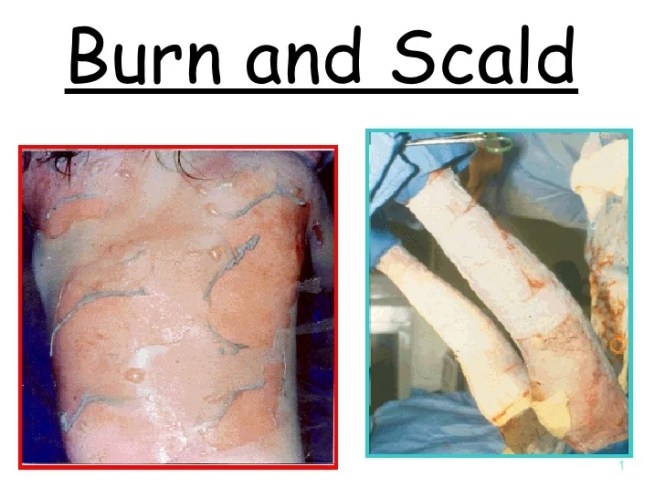 Image result for burns and scalds