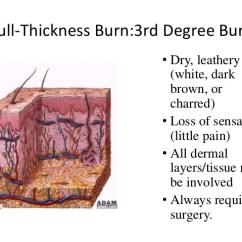 Wound Assessment Diagram Things Fall Apart Plot Burn Ppt Shashi