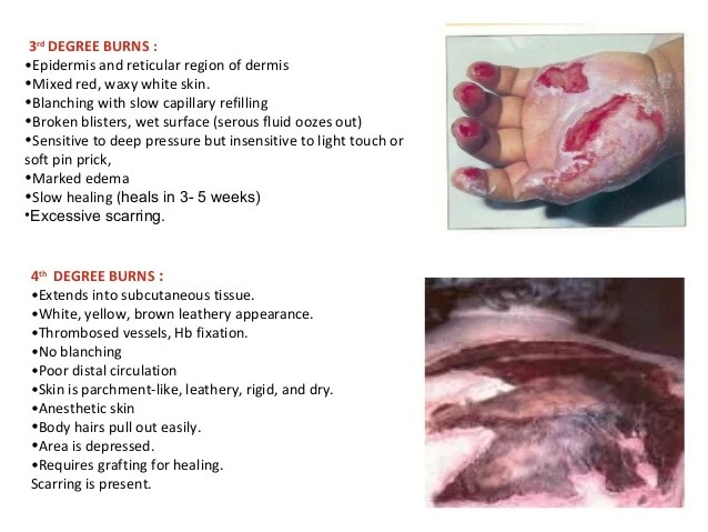 wound assessment diagram riding lawn mowers in canada burns, wounds & pressure sores