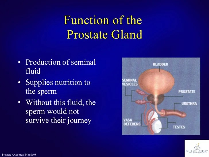Prostate Cancer or Not