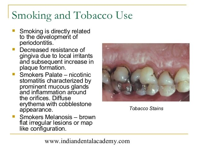 Case history & diagnosis in periodontics /certified fixed ...