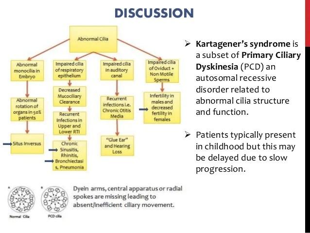 Kartagener Syndrome Medical Student Revision Blog