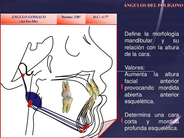 Cefalometria Bjrk Jarabak