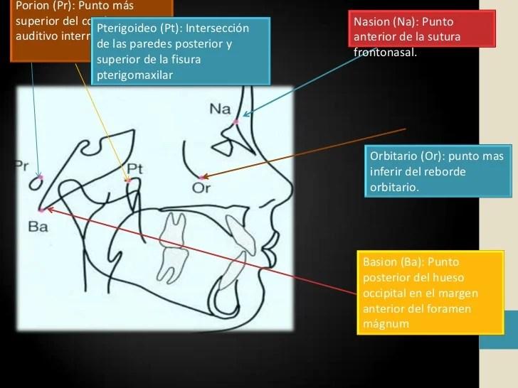 Cefalometria sfm