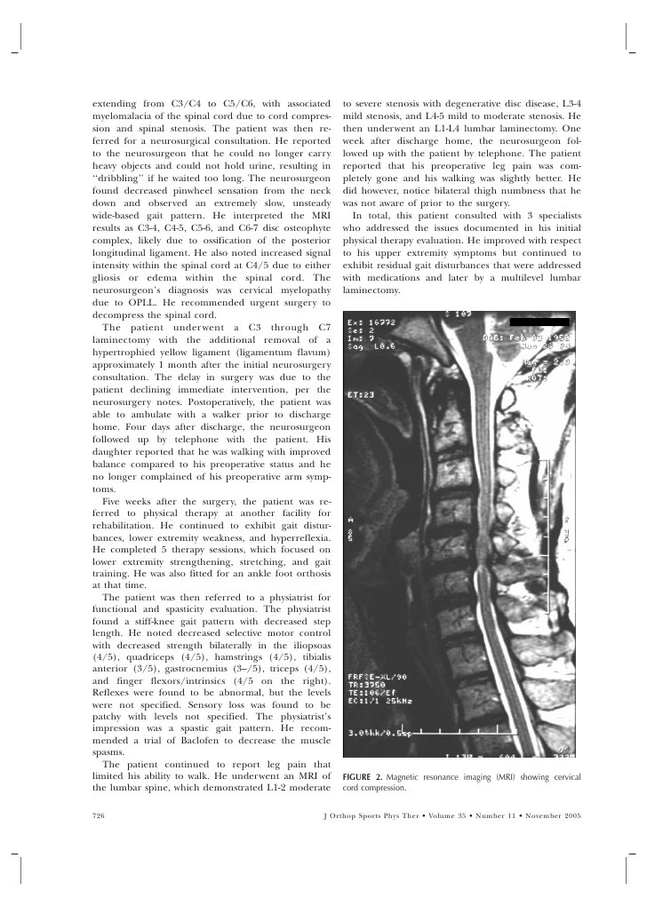 Cervical Myelopathy Differential Diagnosis
