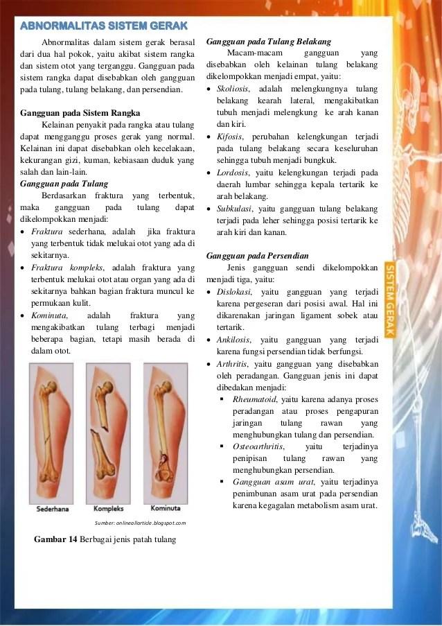 Tiga Kelainan Pada Tulang : kelainan, tulang, Chapter, Abnormalities, Movement, System