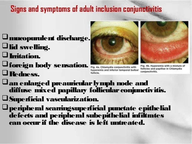 Chlamydia Conjunctivitis