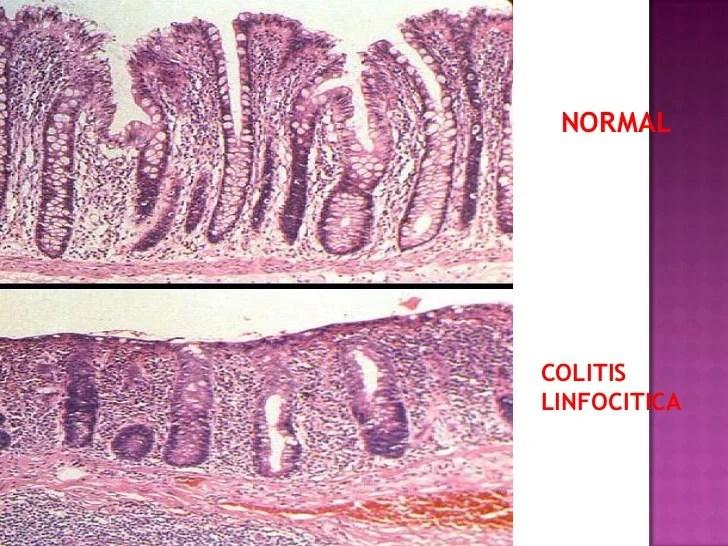 Colitis microscopica 2012 clinica san pablo