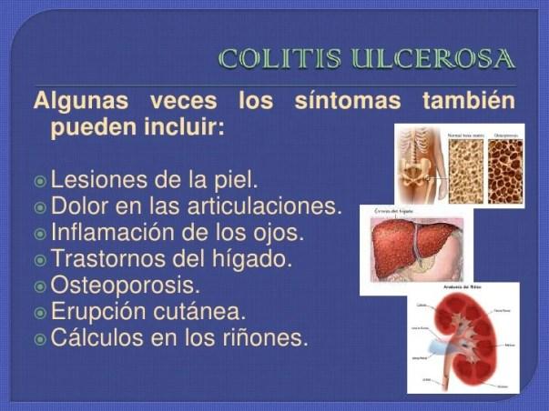 Resultado de imagen para sintomas de las colitis ulcerosa