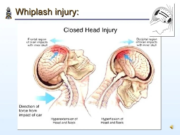 Image result for coup contrecoup whiplash