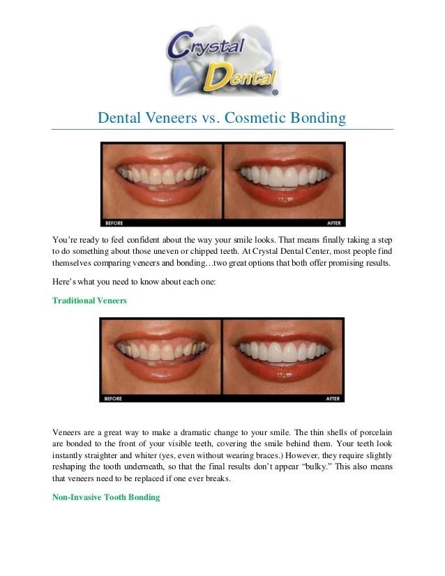 Dental Veneers vs, Cosmetic Bonding