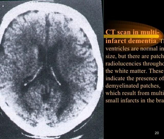 Ct Scan In Multi Infarct Dementia