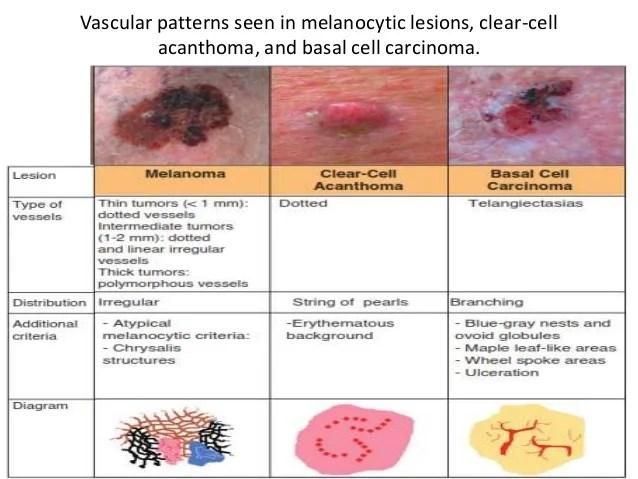 Sebaceous Cyst Vs Epidermal Cyst