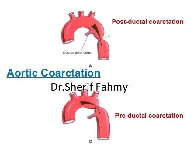 Image result for Preductal coarctation