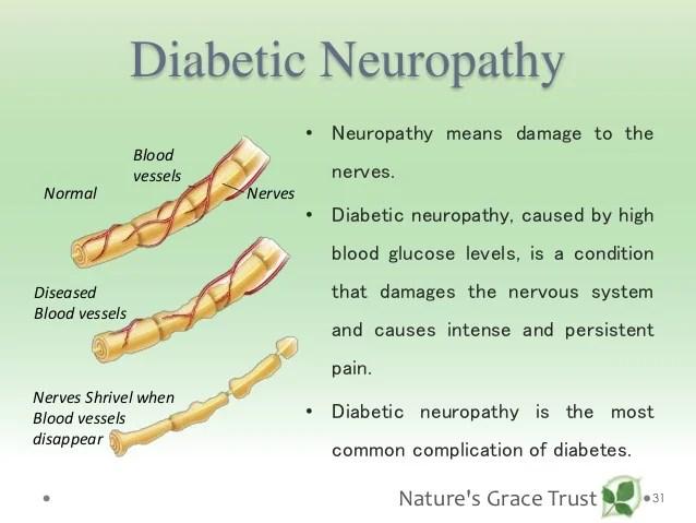 Diabetes Nerve Damage Face