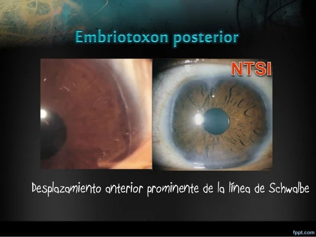 Disgenesias segmento anterior lml