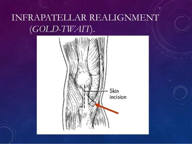Recurrent Dislocation of patella PAWAN