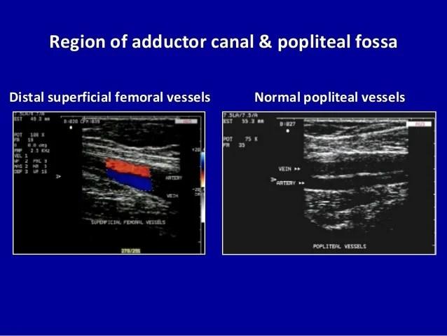 Doppler Peripheral Vascular