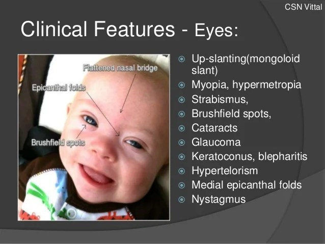down syndrome eye features