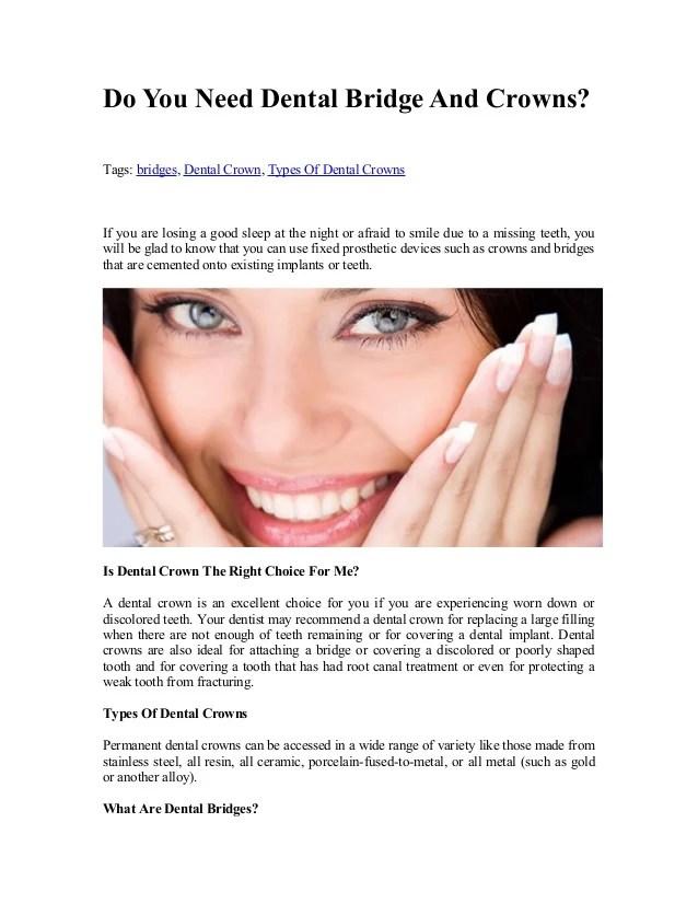 Permanent Gold Teeth Implants : permanent, teeth, implants, Dental, Bridge, Crowns