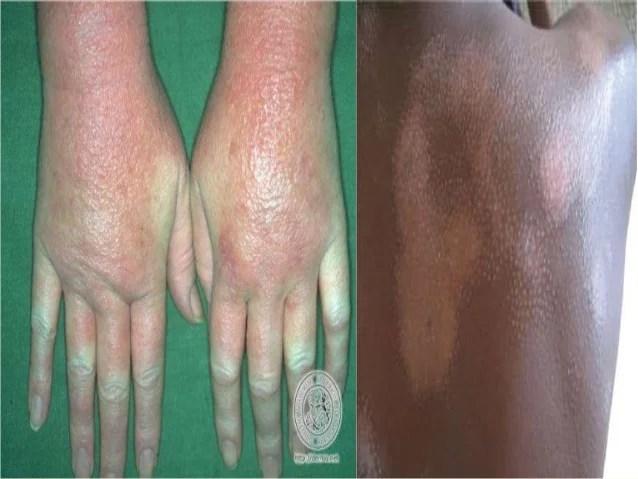 Eczema- A Chronic Skin Disease