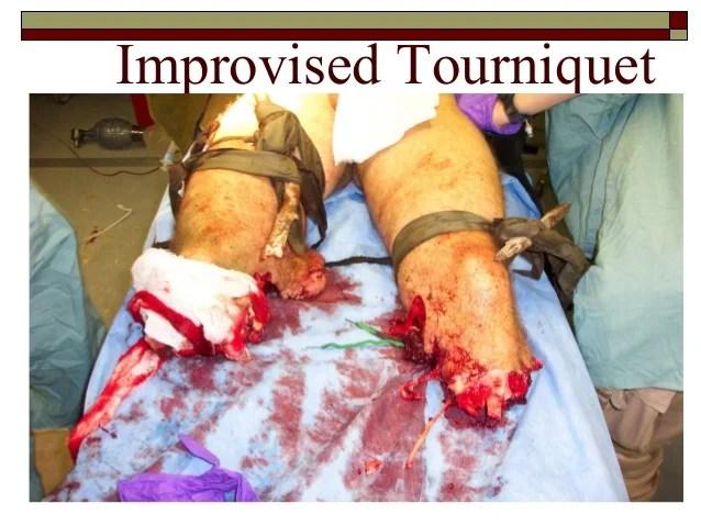 Emr tourniquet education_revised_april_11_2013