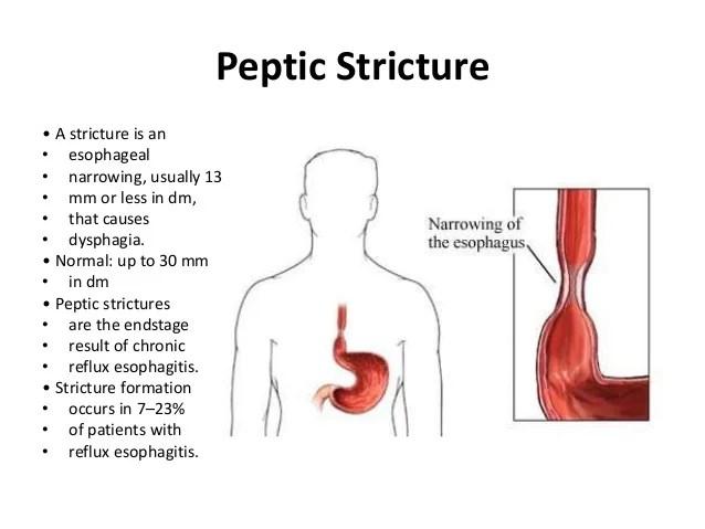 Esophagus & Diaphragmatic Hernia