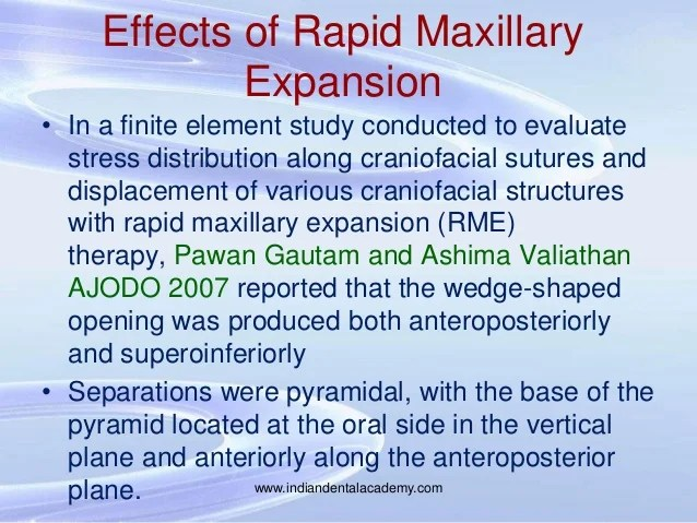 Palatal Expander Side Effects
