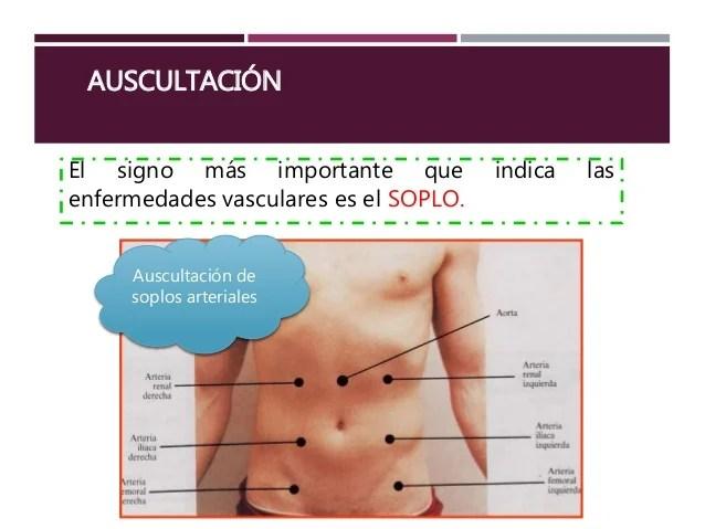 Exploración física del abdomen