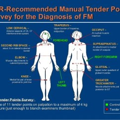 18 Tender Points Of Fibromyalgia Diagram Ezgo Golf Cart Wiring Batteries Disease Overview