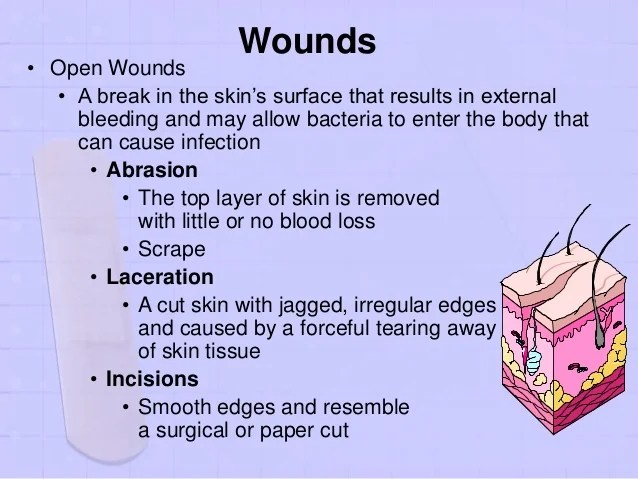 Paper Bleeding Cut