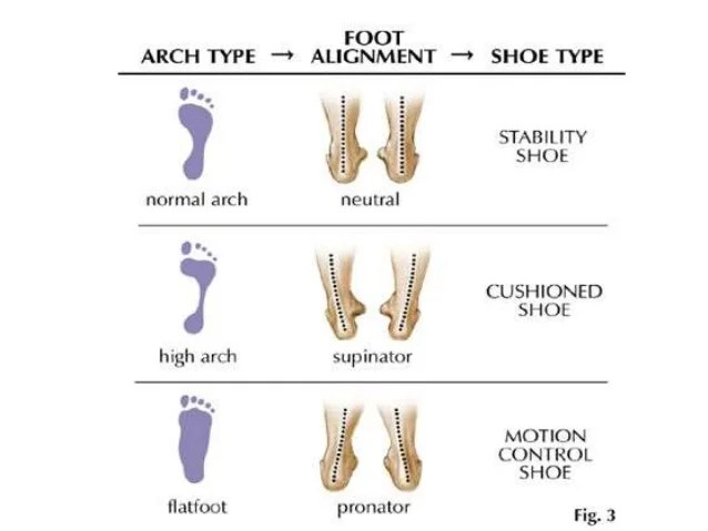 bones in your foot diagram rover 75 srs wiring the arches of block arch deformities 2 balls