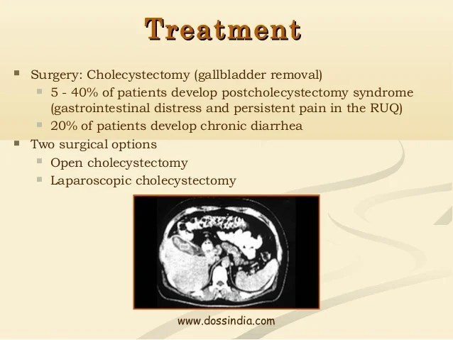 Doss India - Gall Stones Gall Bladder Surgery Treatment ...