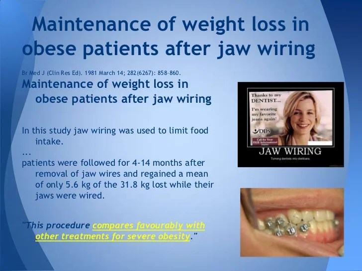 Wiring Jaw For Weight Loss