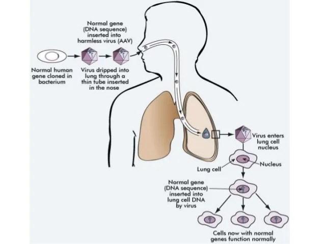 in vivo gene therapy diagram 2001 bmw z3 stereo wiring 10