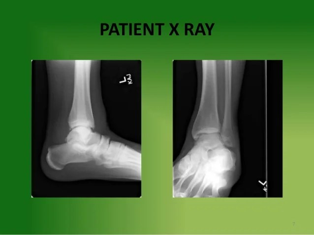 Grade 2+ Ankle Sprain in a Collegiate Football Athlete