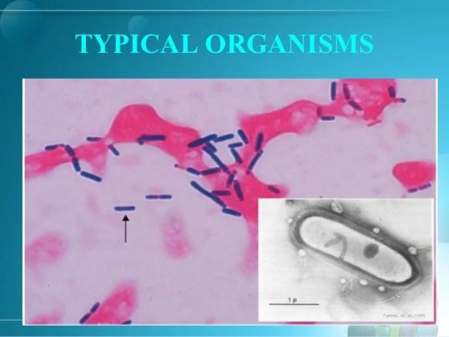 Clostridium Shape Colonies
