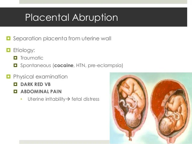 Pregnancy Complications - Whitney Lewis