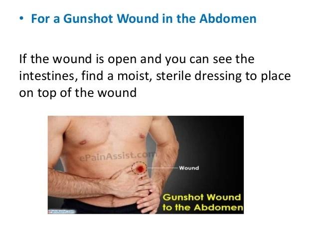 Gunshot first aid