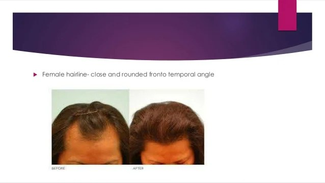 hairline designing - chennai plastic