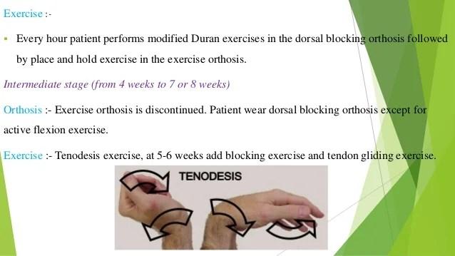 hand rehabilitation following flexor