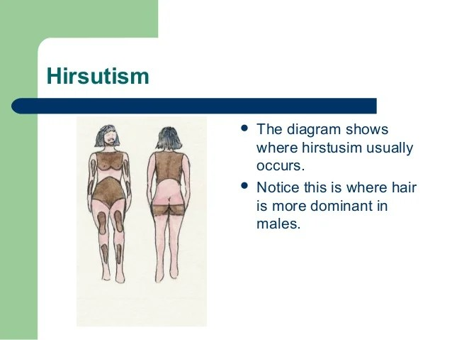 Hirsutism & Hypertrichosis