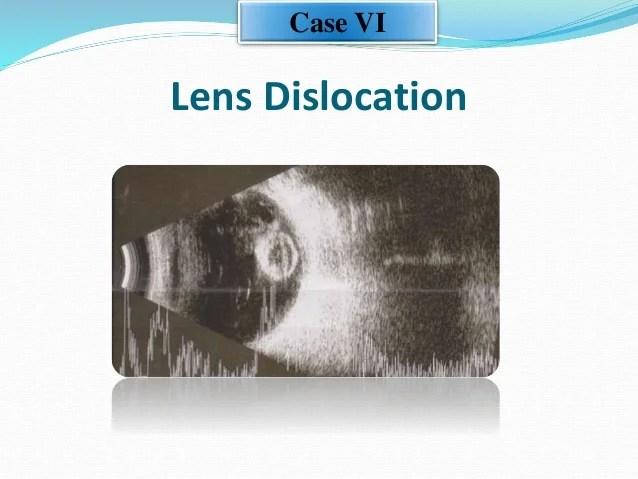 Ultrasonic Evaluation of Eyes With Blunt Trauma