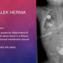 Liver And Spleen Diagram Network Socket Wiring Imaging Modalities Of Diaphragm