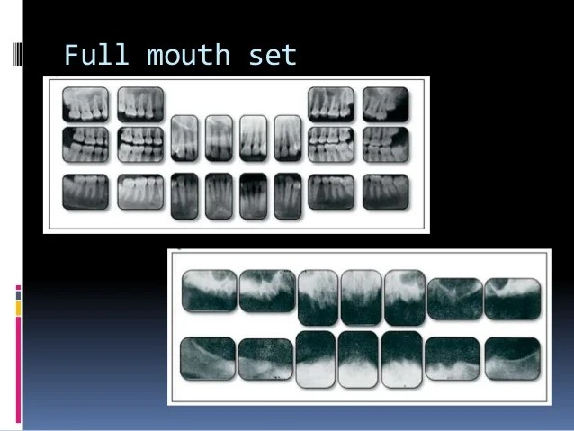 Dental X Ray Positioning Techniques