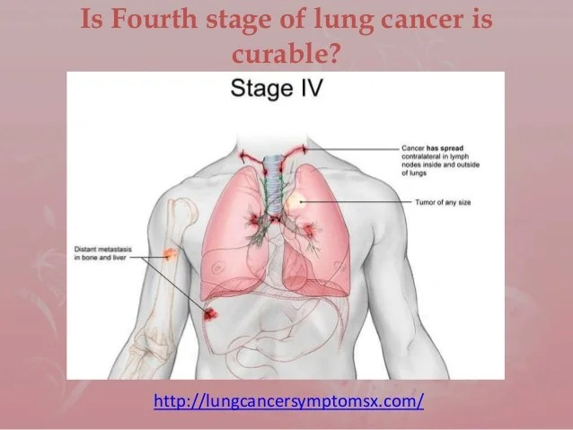is-fourth-stage-of-lung-cancer-is-curable-1-638 Is Stage 3 Cancer Curable