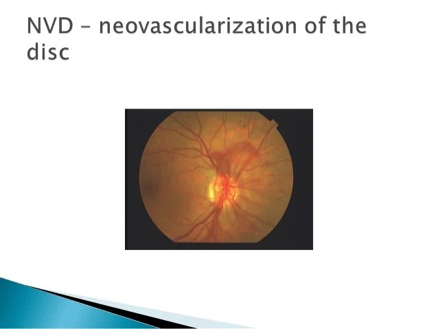 Lecture 3: Diabetic Retinopathy
