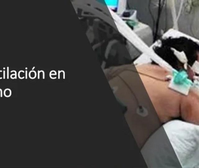 Remodelacion Y Fibrosis 10