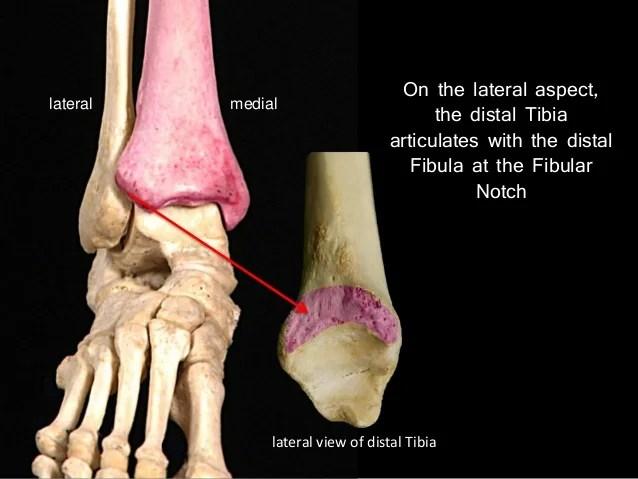 Distal Fibula Lateral Malleolus